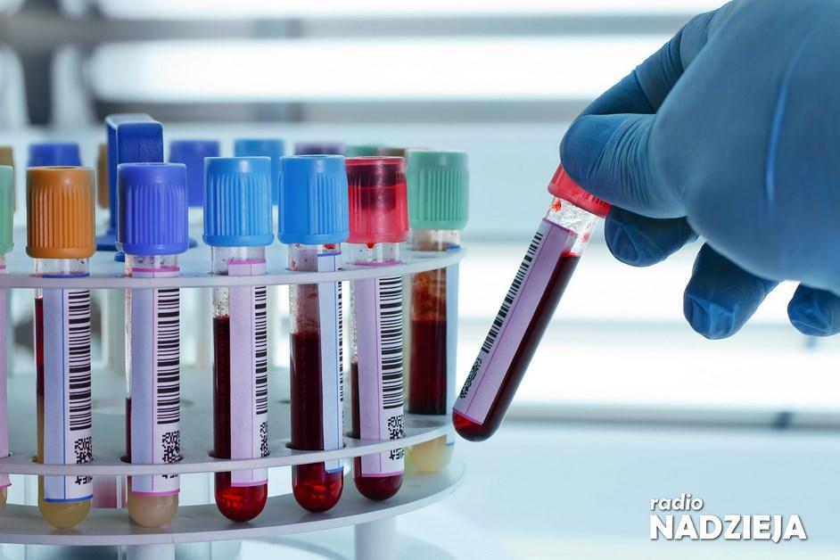 Ciechanowiec: Punkt Pobrań Materiałów do Badań Laboratoryjnych wznawia działalność