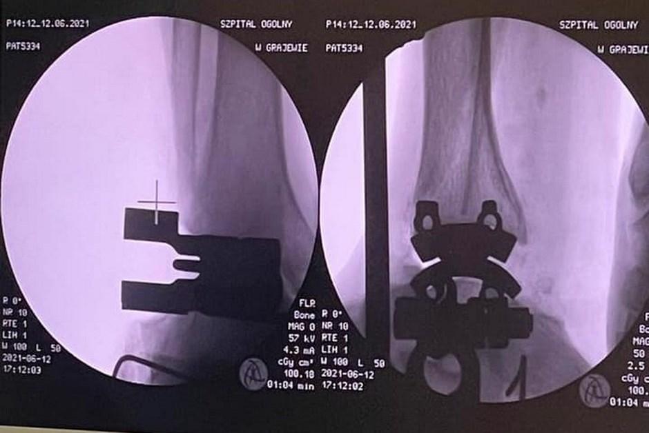 Grajewo: Lekarze wszczepili implant tytanowy
